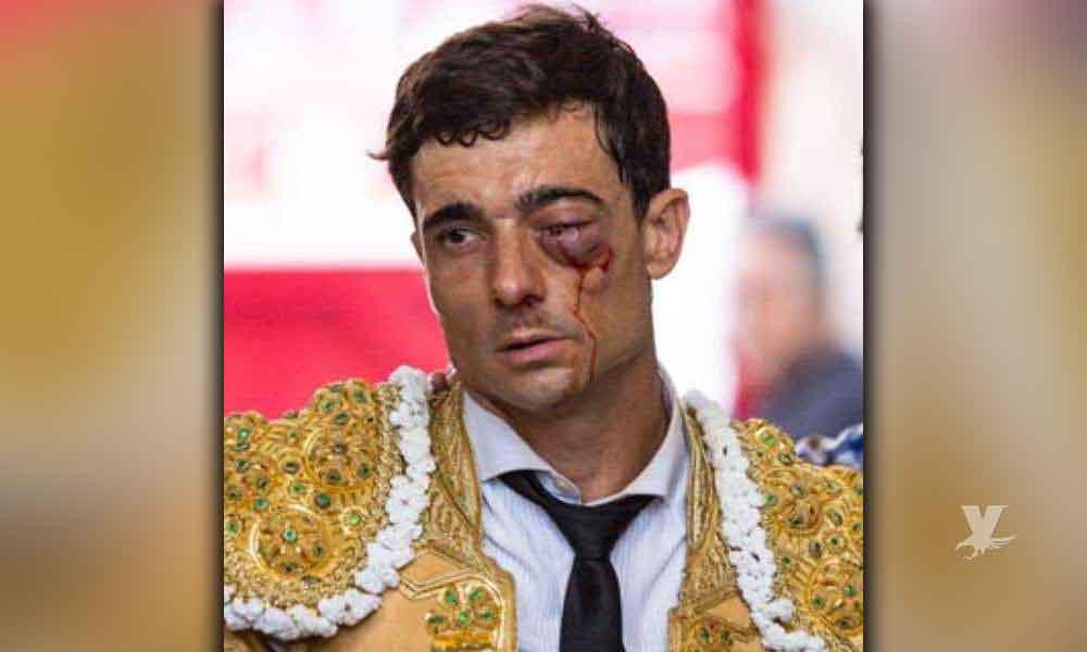 """(VIDEO) Torero """"Paco"""" Ureña recibe tremenda cornada en el ojo"""