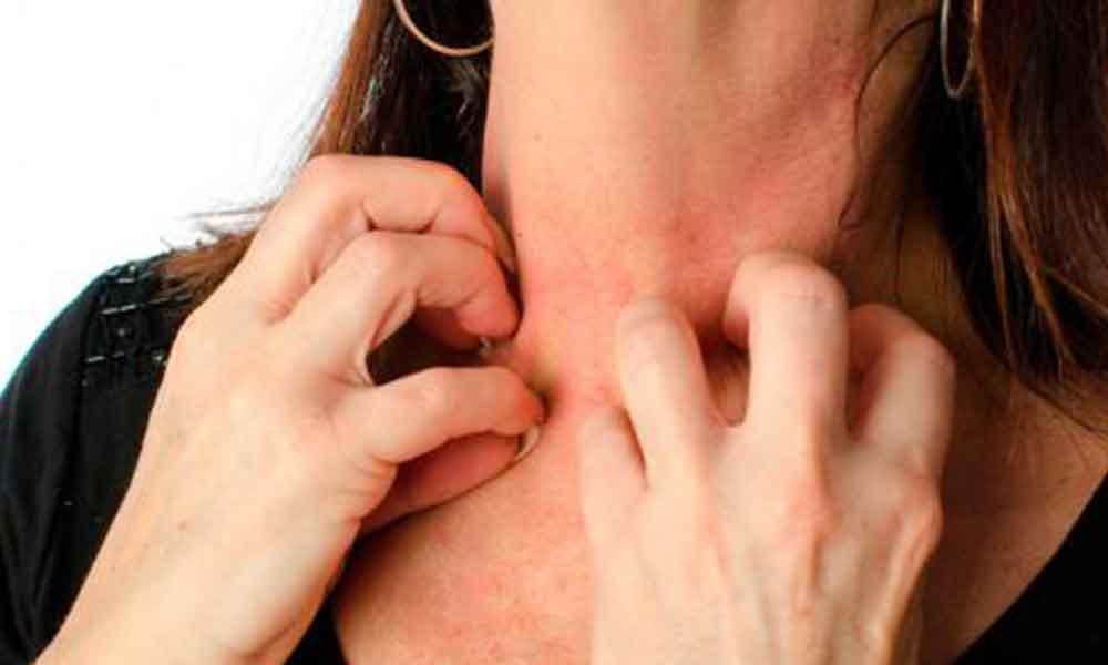 Amor peligroso mujer presentó alergia a su esposo,