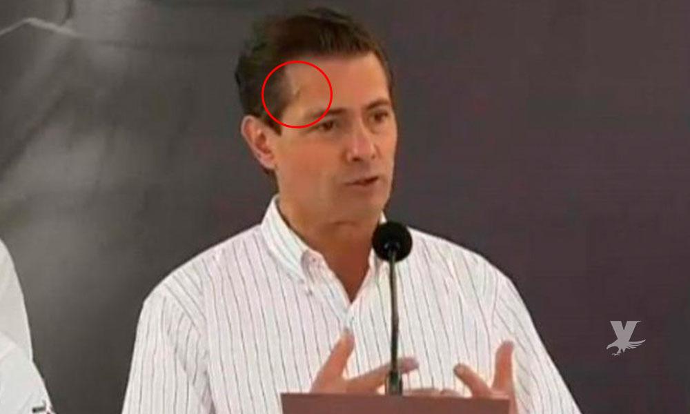 Aparece en evento Enrique Peña Nieto con golpes y herida en la frente