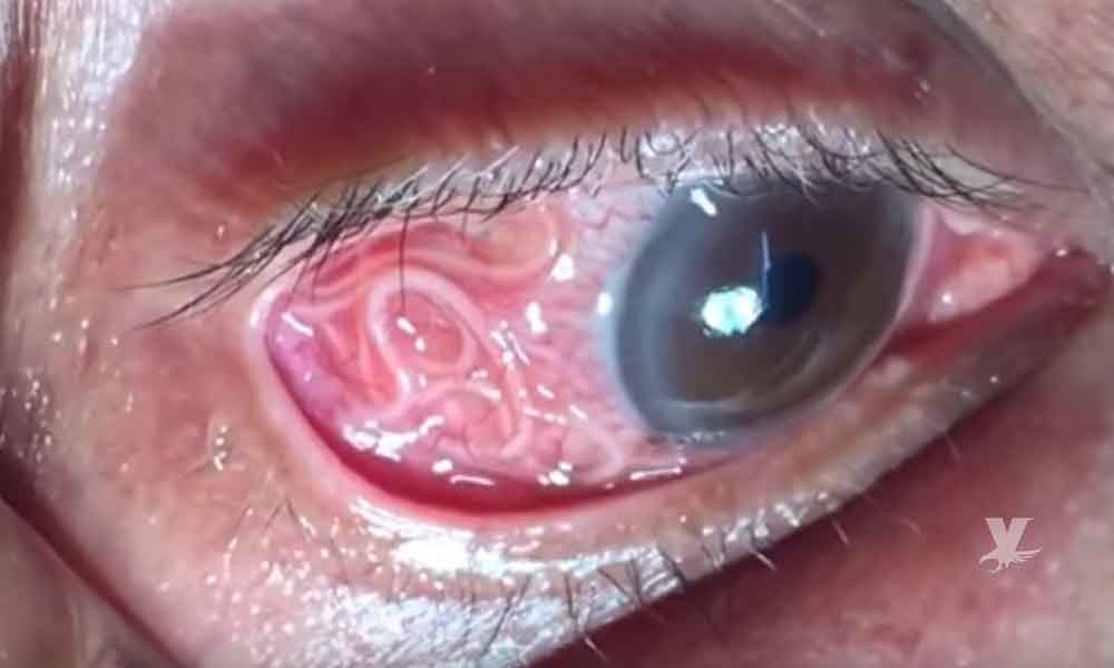 (VIDEO) Doctor extrae gusano de 15 cm del ojo de una persona mayor