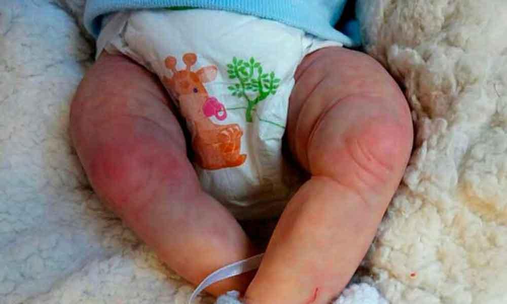 Bebé de cuatro meses muere por no cambiarle el pañal en semanas, ya tenía gusanos