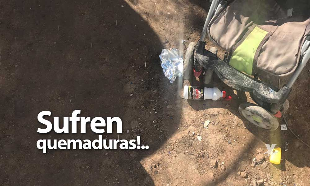 Menores sufren quemaduras con ácido muriático y aluminio en Mexicali