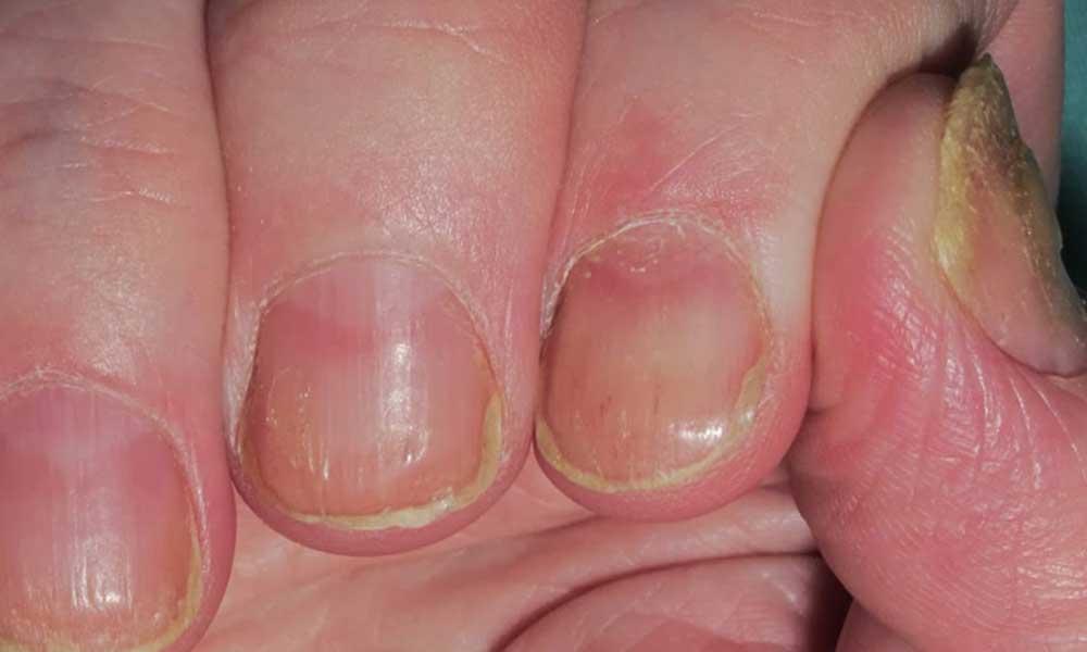 Sus uñas se habían deformado sin tomar importancia, le diagnosticaron una condición crónica en la piel
