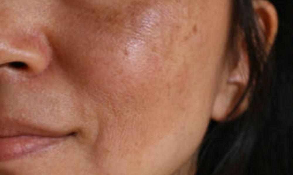 Elimina las manchas de la piel y el paño con estos sencillos tips