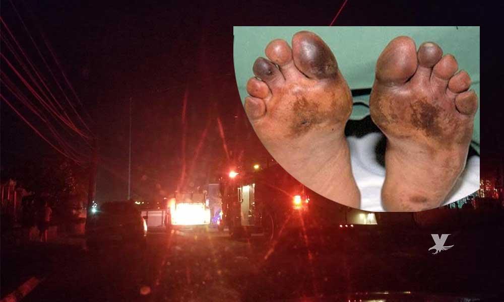 Tras discusión familiar, hombre le quema pies y manos a su esposa; ocurrió en Mexicali