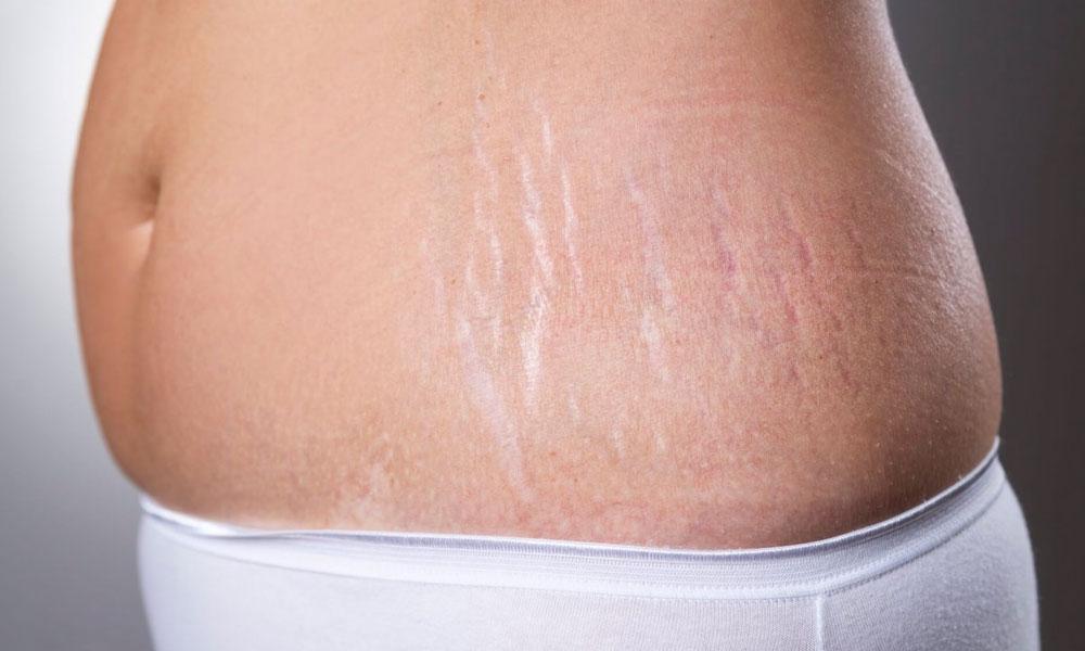 Con estos remedios puedes quitar las estrías blancas de tu cuerpo