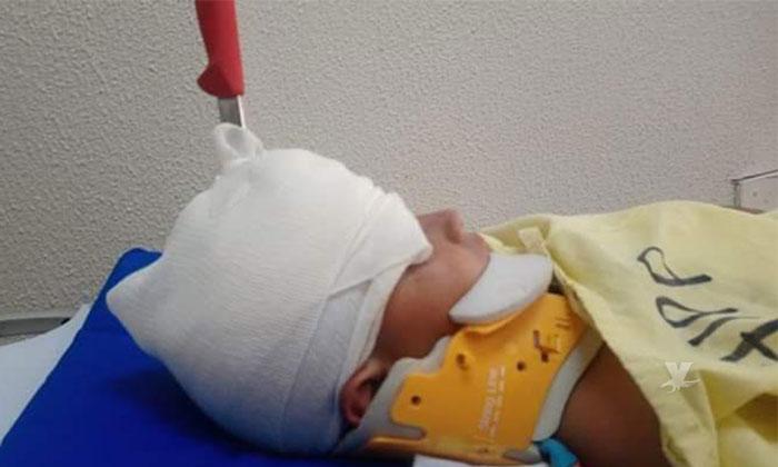 Menor de edad ataca a otro con cuchillo que termina enterrado en su cabeza