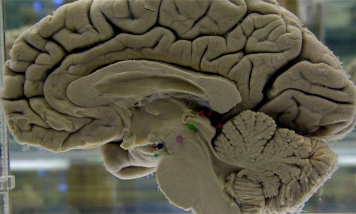 Muere joven por parásitos intestinales en el cerebro