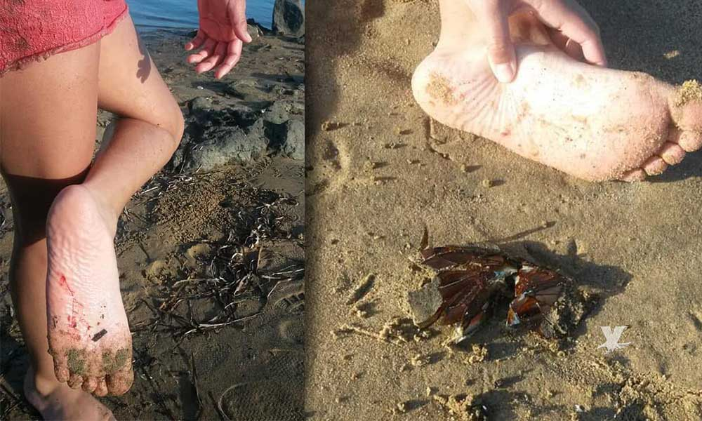 ¡Gente puerca! Denuncia una madre de familia por vídrios en la playa