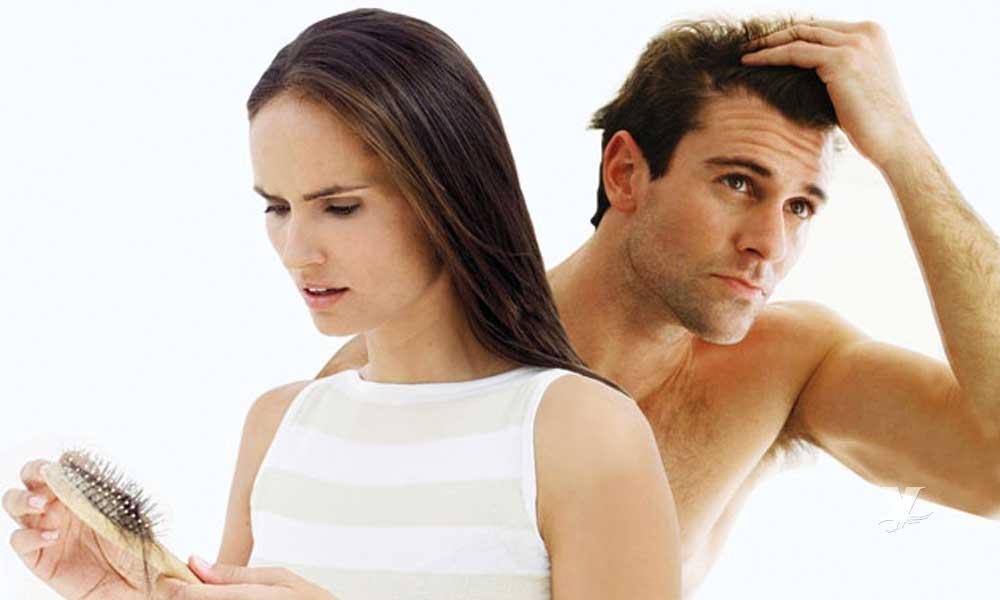 Diferencia de la caída de cabello entre hombres y mujeres
