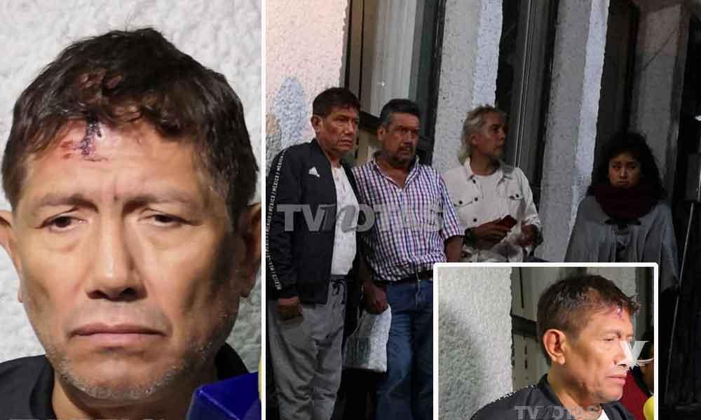 Ladrones ingresan a casa de Juan Osorio, él se encontraba en el lugar y fue brutalmente golpeado