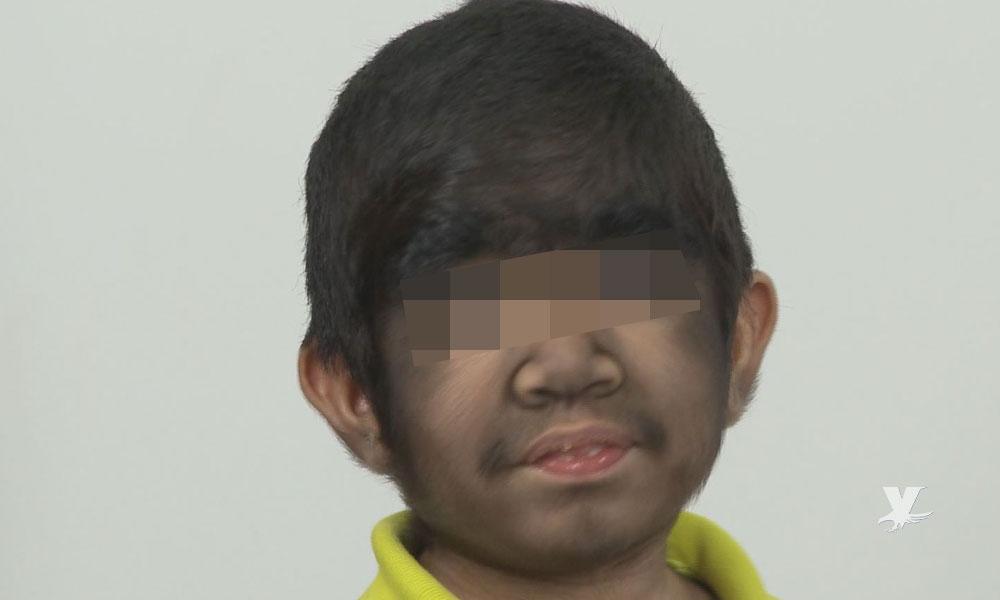 """Niños contraen """"Síndrome del Hombre Lobo"""" por error de medicamento"""