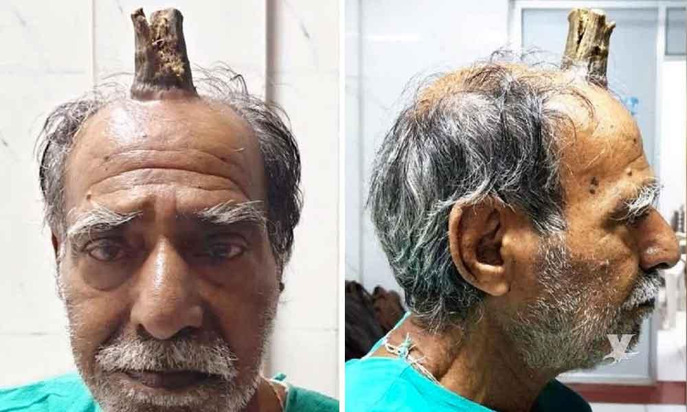 Hombre de 74 años sufre crecimiento de 'cuerno del diablo'