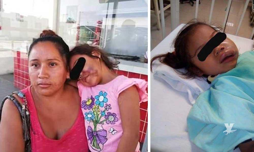 Madre denuncia maltrato físico por parte de maestras en el jardín de niños a su hija
