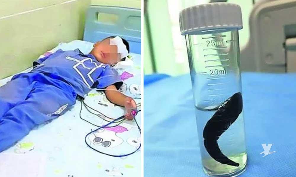 Niño tose sangre por 10 días, al ser revisado encuentra a una sanguijuela en su garganta