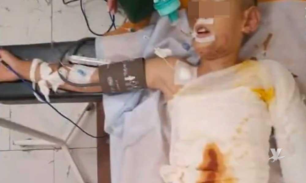 Niños queman a amigo mientras jugaban a bañarse con gasolina
