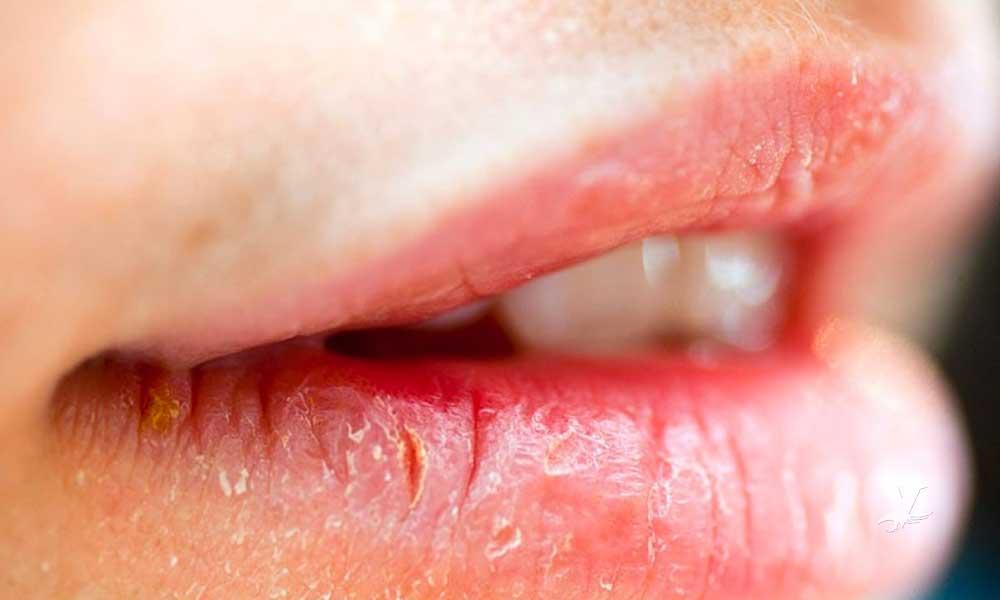 Consejos para evitar los labios resecos