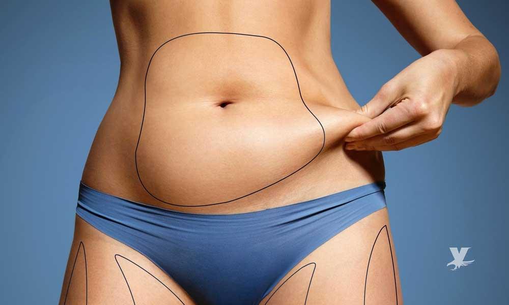 Cirugía para bajar de peso disminuye el riesgo de derrame cerebral