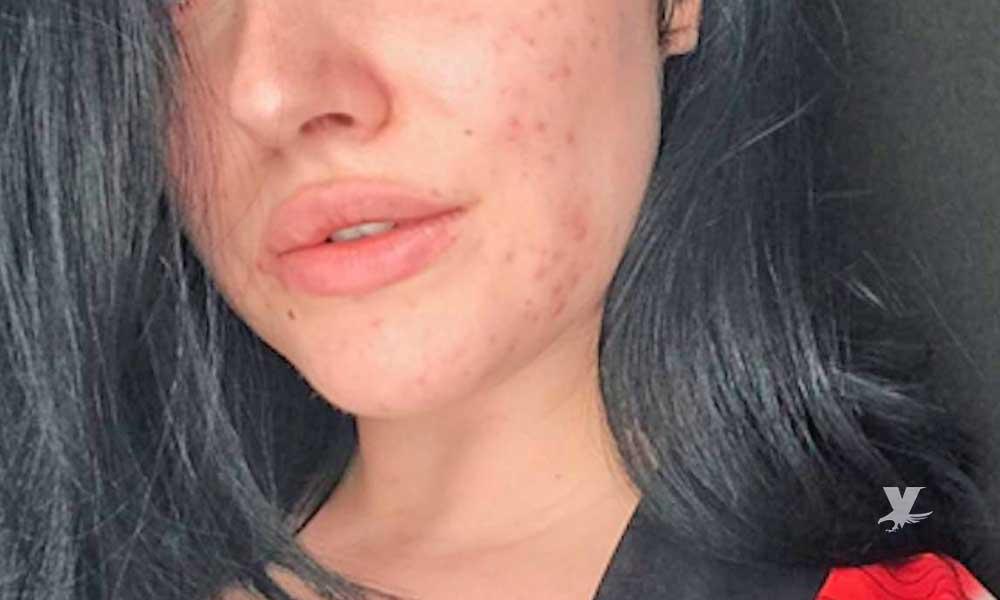 Medicamentos contra el acné pueden inducir al suicidio