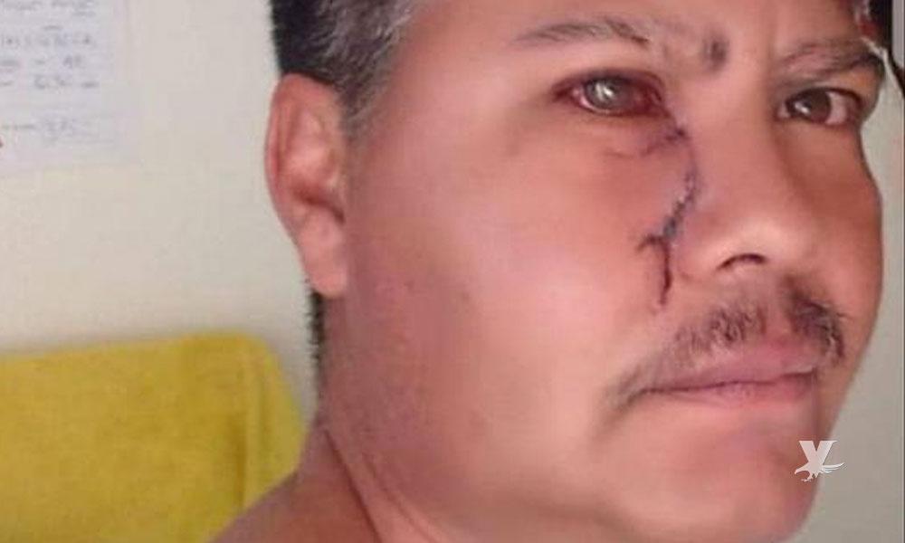 Árbitro del sector amateur es agredido por futbolista y pierde la vista de uno de sus ojos